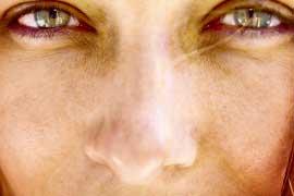 Pele seca por exposição solar