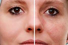 Tratamento de peles sensíveis